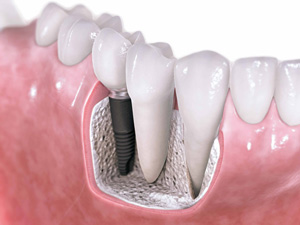 Signs Your Dental Implant May Be Failing