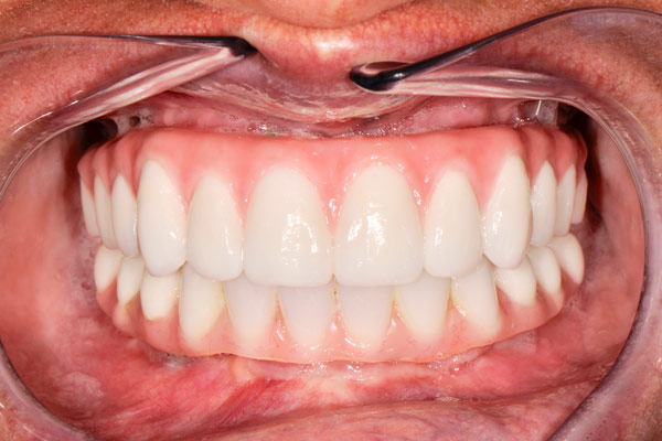 image of baylakes complex dentistry smile gallery after2