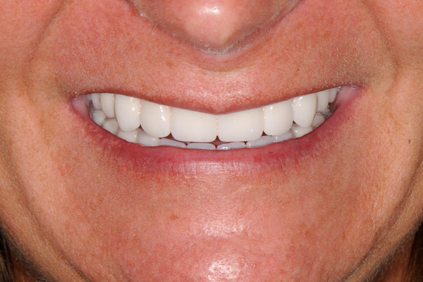 image of baylakes complex dentistry smile gallery after3