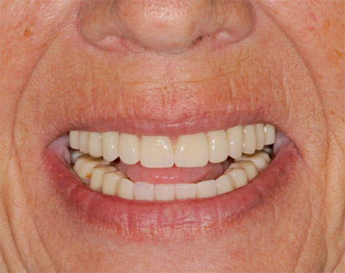 before and after overdenture 1