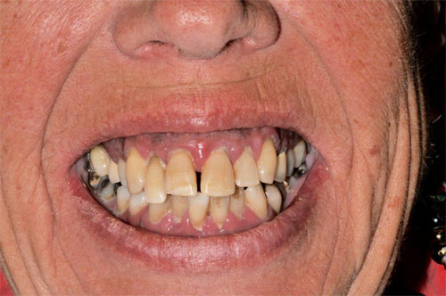 before and after overdenture 4
