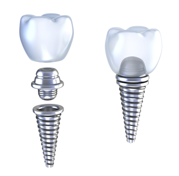 Dental Implants Bay Lakes Center for Complex Dentistry WI 54303-2636